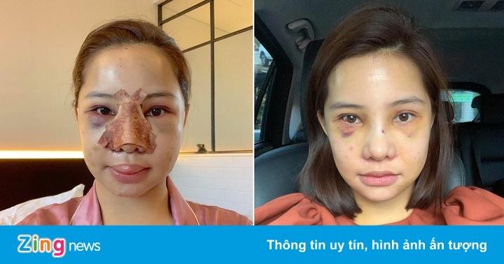 Lưu Đê Ly công khai phẫu thuật thẩm mỹ toàn bộ gương mặt