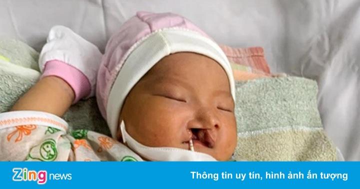 Mẹ bỏ rơi bé sơ sinh bị sứt môi vừa chào đời