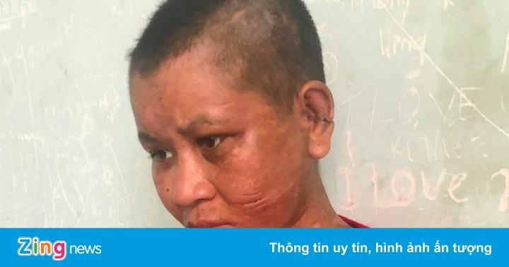 Cô gái 9X làm thuê tố bị chủ nhà ngáo đá tra tấn dã man