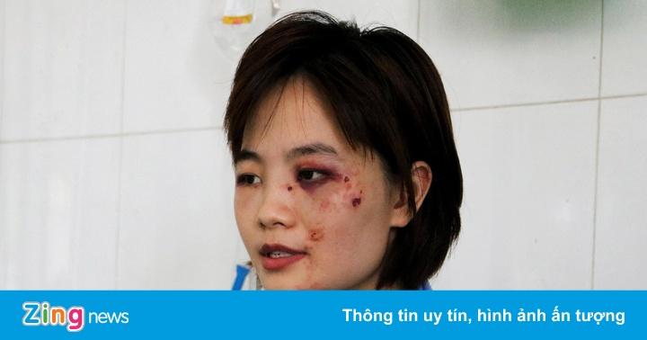 Nữ phụ xe bị 5 thanh niên đánh nhập viện: 'Tôi tủi thân và ám ảnh'