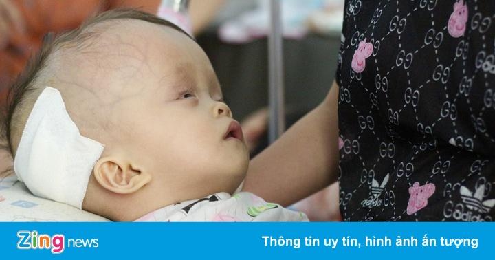 Bé gái một tuổi đầu to, úng nước vì dị tật bẩm sinh ở não