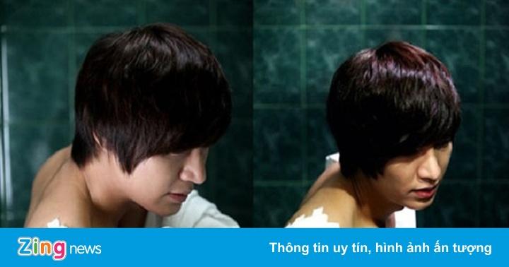 Lee Min Ho và loạt sao bị tai nạn trên phim trường