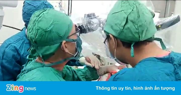 Bệnh viện tỉnh lần đầu phẫu thuật thành công ca u màng não - mega 645