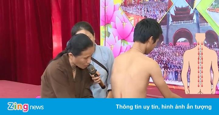 Bác sĩ ngỡ ngàng vì phương pháp vỗ dầu hỏa chữa bệnh của 'cô Yến'