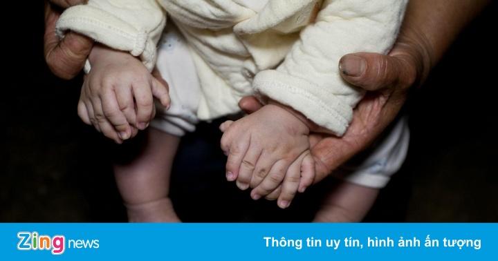 Căn bệnh kỳ lạ khiến cậu bé có 31 ngón tay chân