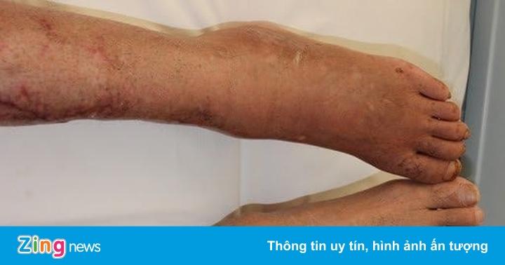 Căn bệnh có thể gây hoại tử chân thường nhầm với đau xương khớp